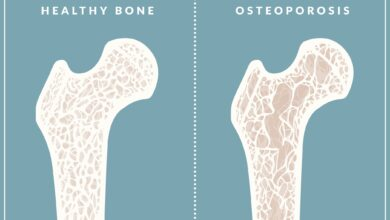 Photo of Learn Causes and Treatment of Osteoporosis