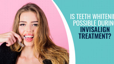 Photo of Is Teeth Whitening Possible During Invisalign Treatment?