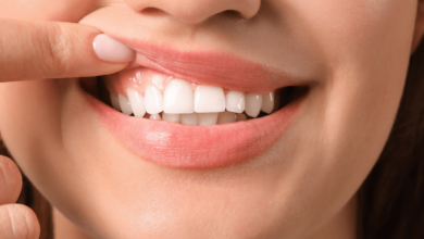 Photo of How to Know if you have a Healthy Gum!