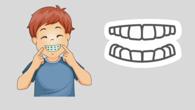 Photo of How does the transparent dental aligner work?