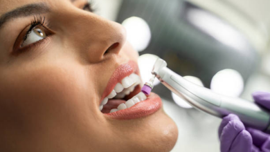 Photo of Tooth Polishing Procedure: How it Works?