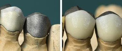Photo of METAL-CERAMIC CROWN: AN OVERVIEW