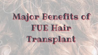 Photo of Major Benefits of FUE Hair Transplant