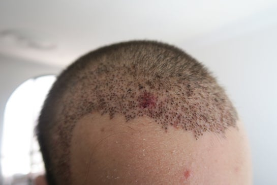 fue hair transplant side effects